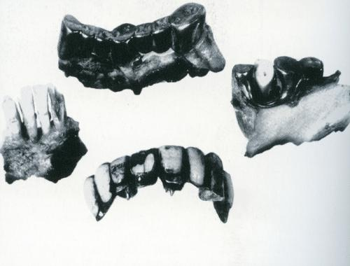[Image: teeth2.jpg]